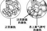 肺气肿预防保健